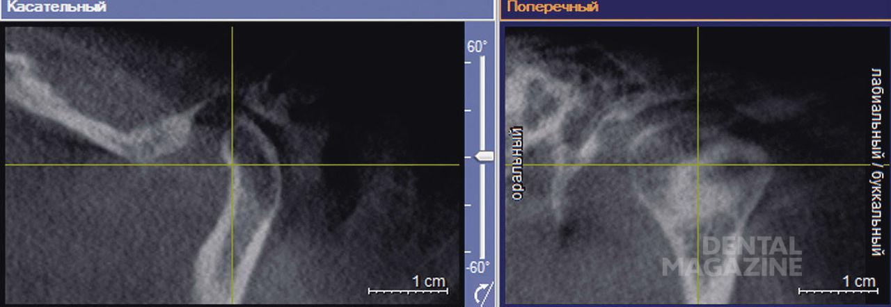 Рис. 8. Расположение координатных осей при изучении суставной ямки.