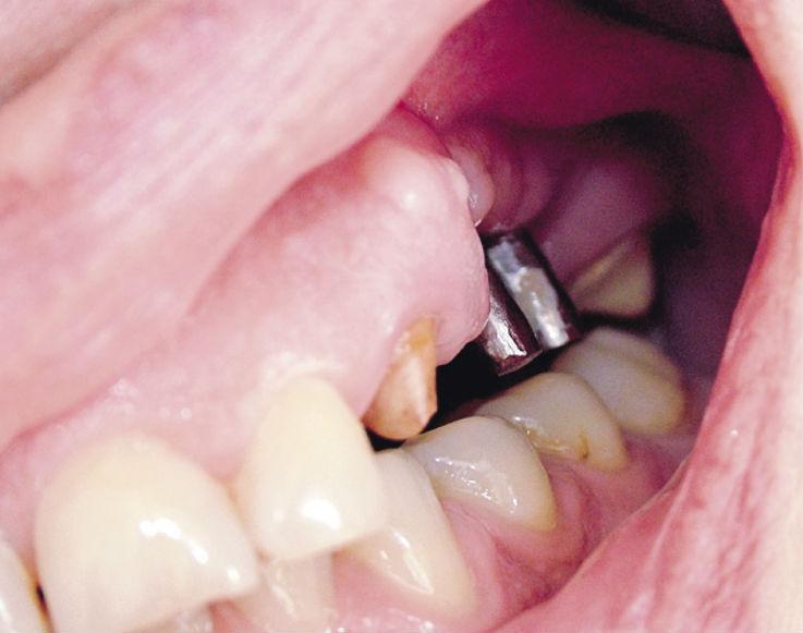 Рис. 8. Окклюзионные взаимоотношения культей опорных зубов, головок СИ и нижнего зубного ряда.