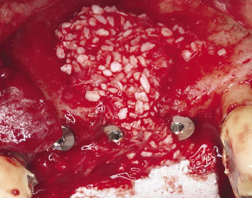 Рис. 8. Введение в дефект материала Apatos OsteoBiol, смешанного с аутокостью.