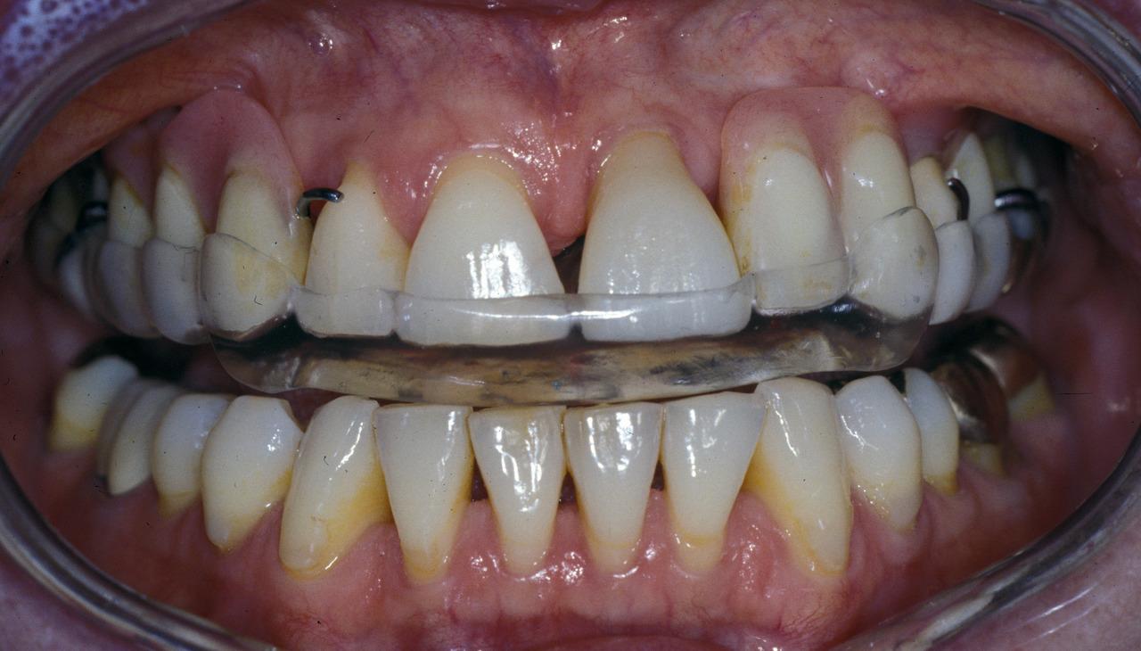 Рис. 8. Состояние через 4 года после протезирования; центрирующая окклюзионная шина на верхнюю челюсть для стабилизации и защиты зубов.