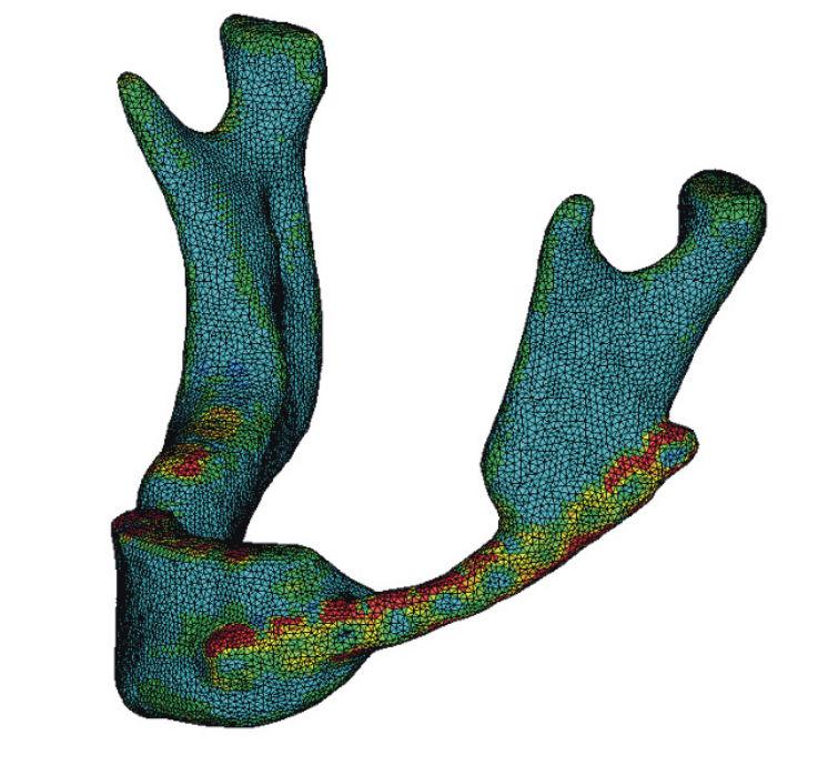 Рис. 9а. Общий вид конечно-элементной модели с учетом распределения свойств тканей и ее разрез в сагиттальной плоскости.