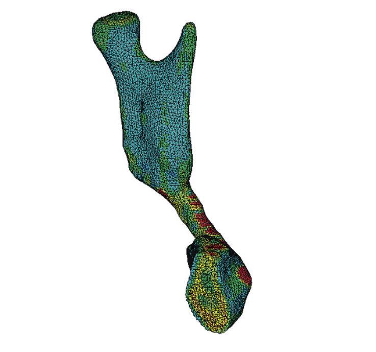 Рис. 9б. Общий вид конечно-элементной модели с учетом распределения свойств тканей и ее разрез в сагиттальной плоскости.