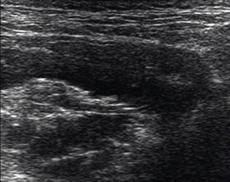 Рис. 9. Латеральная крыловидная мышца. КЖ — кожа, подкожно-жировая клетчатка, поверхностная мышечно-апоневротическая система. ОКУ — околоушная слюнная железа. ЖМ — жевательная мышца: а — поверхностная часть, б — глубокая часть. Лат. КМ — латеральная крыловидная мышца: а — верхняя головка, б — нижняя головка. Сух. верх. гол. ЛКМ — сухожилие верхней головки латеральной крыловидной мышцы. Сух. ниж. гол. ЛКМ — сухожилие нижней головки латеральной крыловидной мышцы.