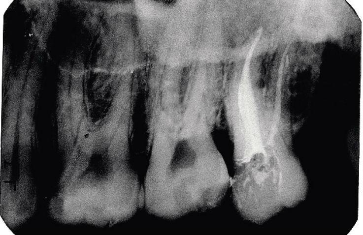 Рис. 9б. Зуб 1.8, Ds: хронический гангренозный пульпит 1.8: результат лечения.