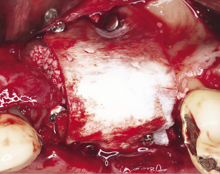 Рис. 9. Установка пластины Lamina OsteoBiol, защищающей операционное поле от повреждения.