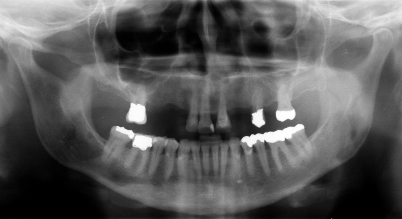 Рис. 9. Ортопантомограмма через 4 года после установки протезных работ.