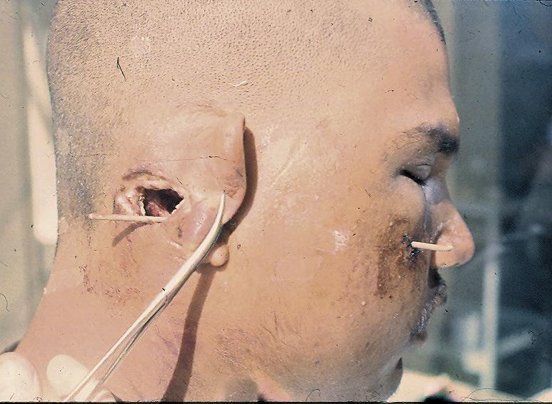 Рис. 3. Сквозное пулевое ранение левой щеки и сосцевидного отростка. Входное отверстие очень небольшое, выходное диаметром около 4 см. Рассечь такой канал без вреда для раненого невозможно.