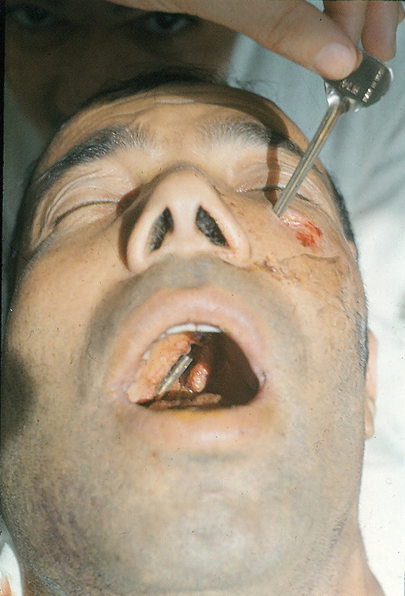 Огнестрельные ранения придаточных пазух фото