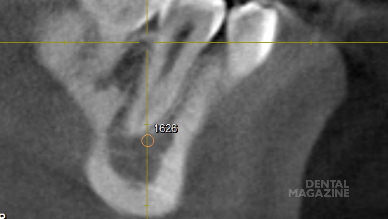 Рис. 2. Измерение плотности костной ткани в области зуба 4.5 в сагиттальной (а) ифронтальной (б) плоскостях.