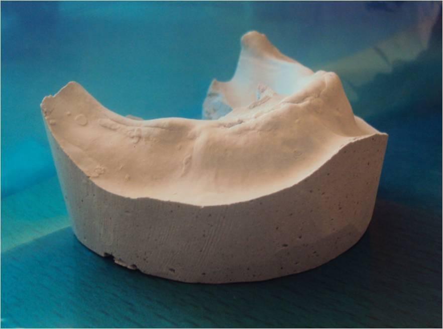 Рис. 9. Гипсовая модель нижней челюсти после хирургической реконструкции.