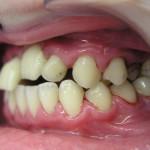 Протезирование зубов при пародонтозе и пародонтите