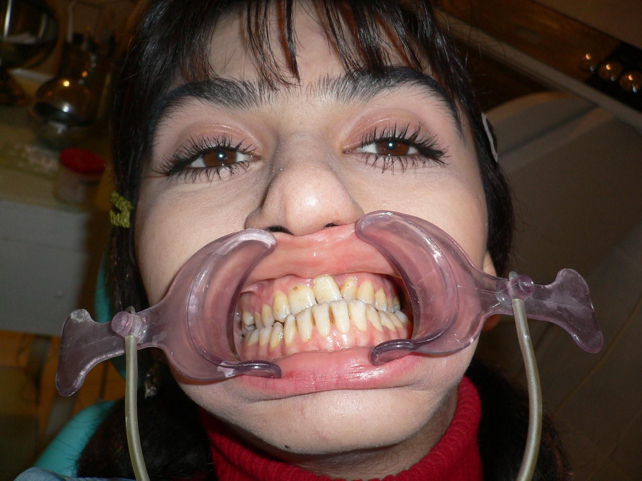 Рис. 1. Внешний вид пациентки с микрогнатией верхней челюсти (вид спереди).