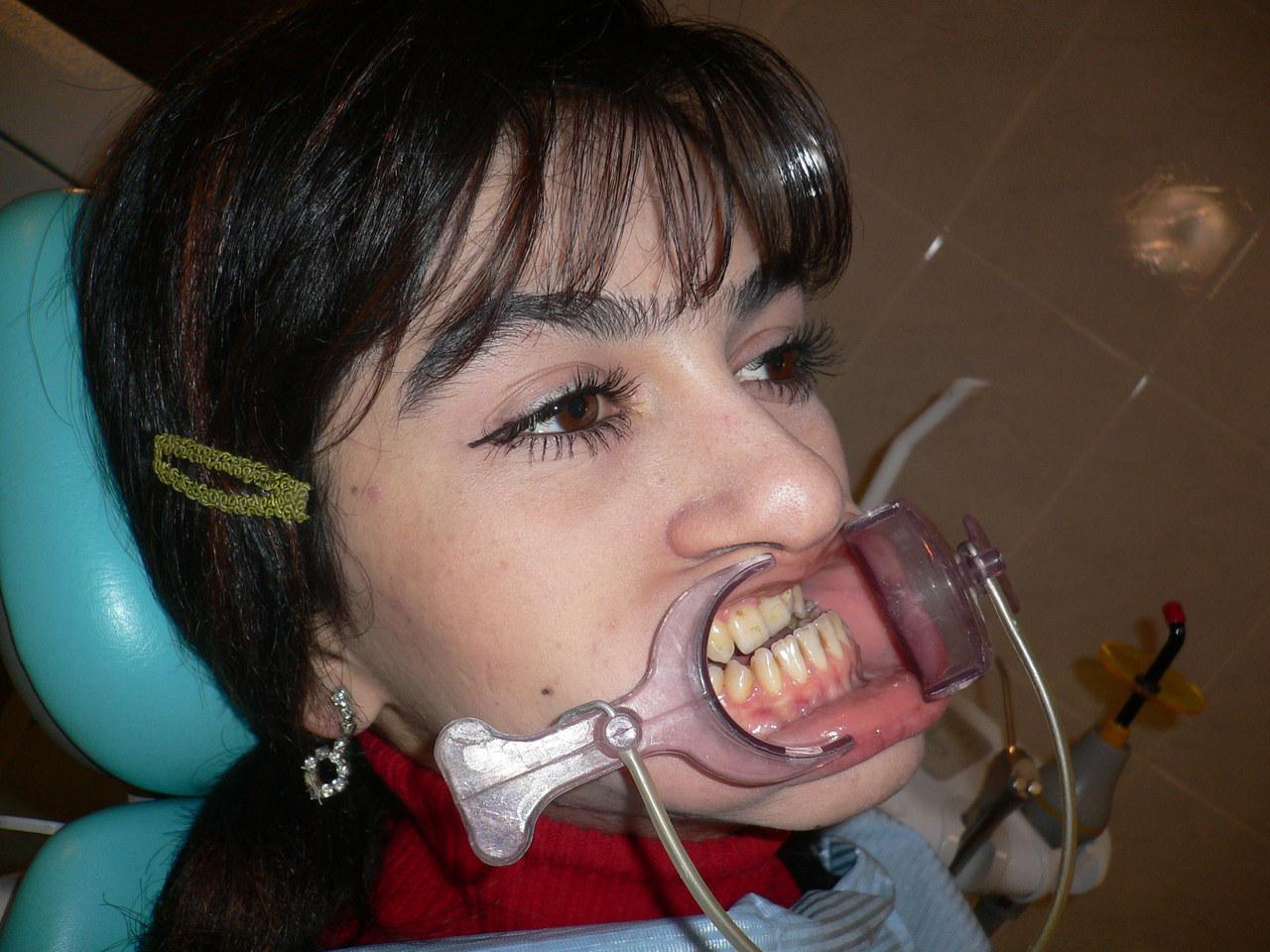 Рис. 2. Внешний вид пациентки с микрогнатией верхней челюсти (вид сбоку).