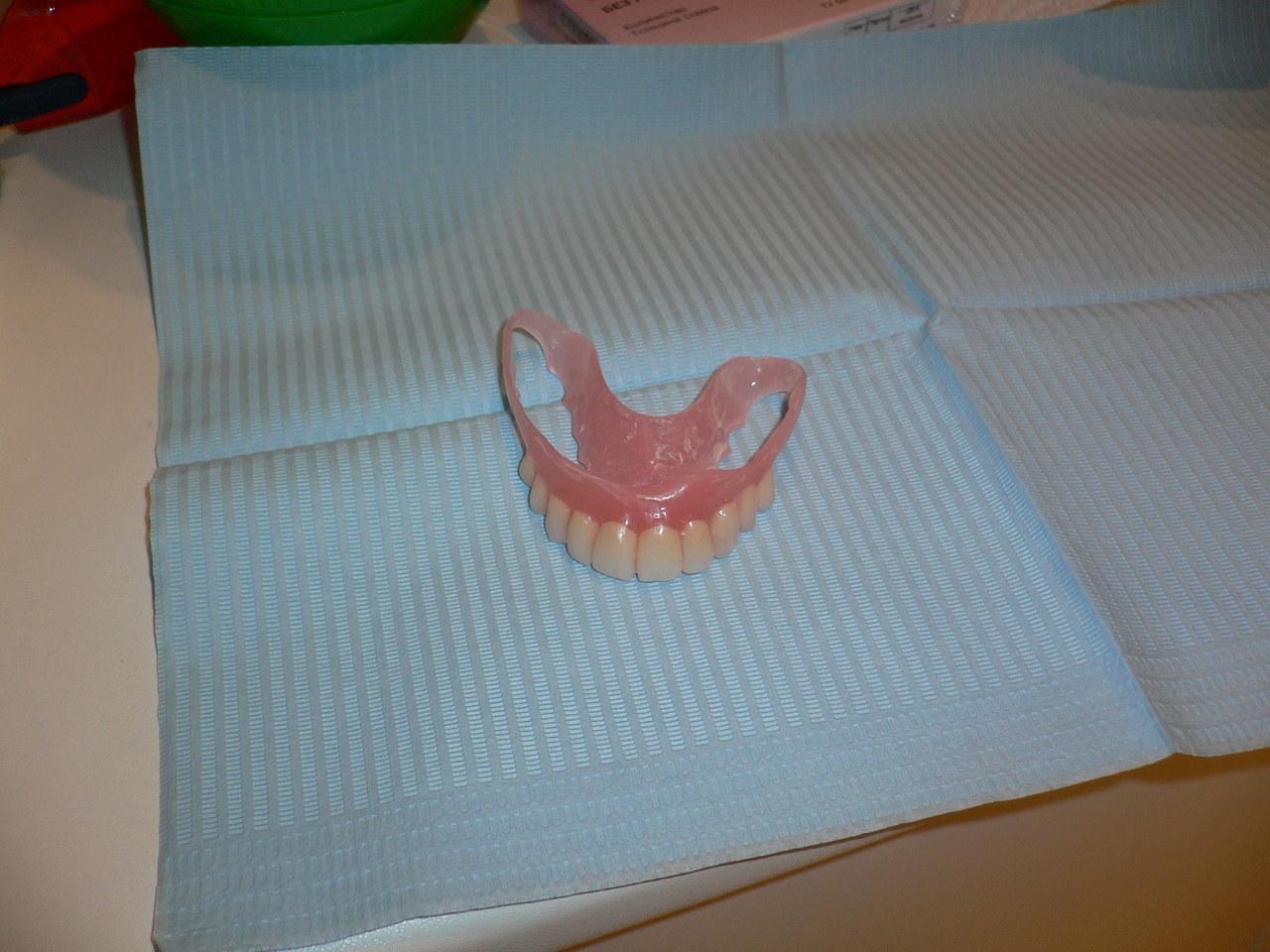 Рис. 3. Косметический нейлоновый протез на верхнюю челюсть.