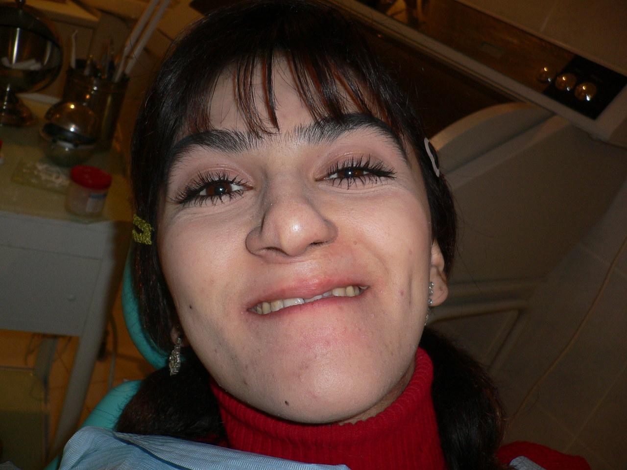 Рис. 5. Внешний вид пациентки с микрогнатией верхней челюсти до ортопедического лечения.