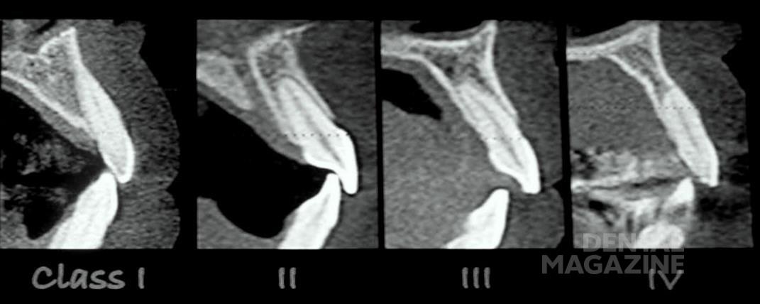 Рис. 1. КТ. Классификация положения фронтальных зубов.