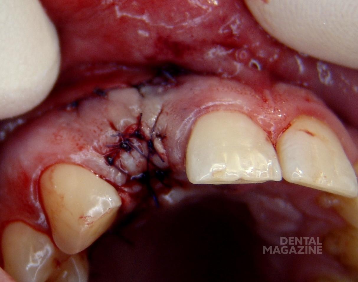 Рис. 13. Лунка закрыта свободным эпителиальным трансплантатом.