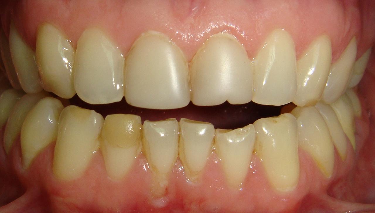 Рис. 1а. Старые реставрации зубов 11, 21, 42.