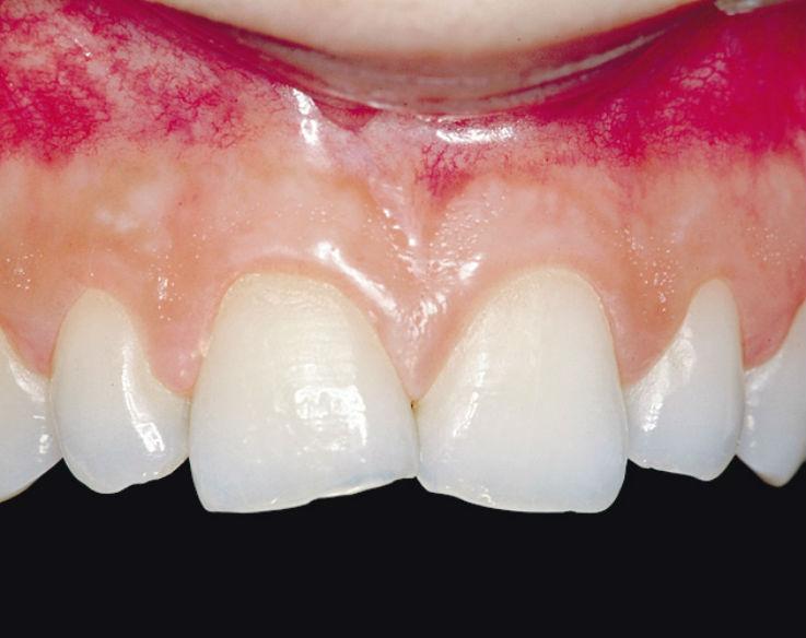 Рис. 1. Исходная ситуация: сильный абразивный износ передних зубов верхней челюсти вследствие бруксизма.