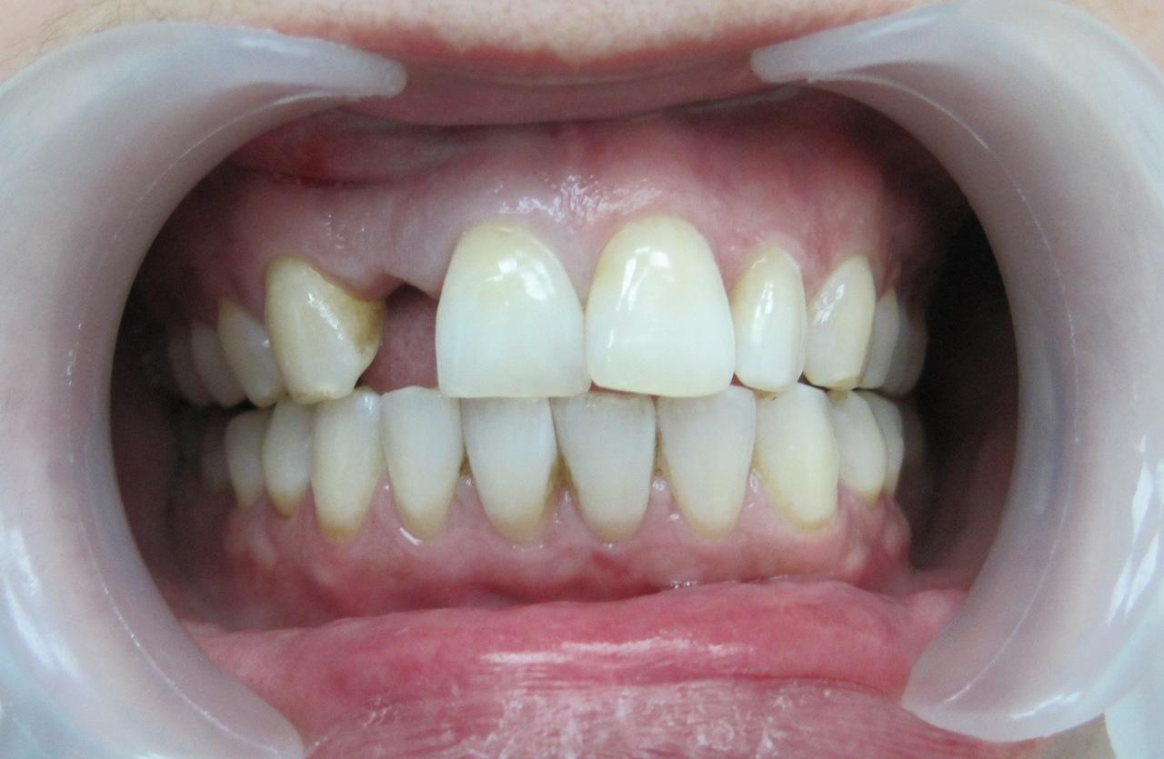 Рис. 1. Исходная клиническая ситуация в полости рта пациентки П.