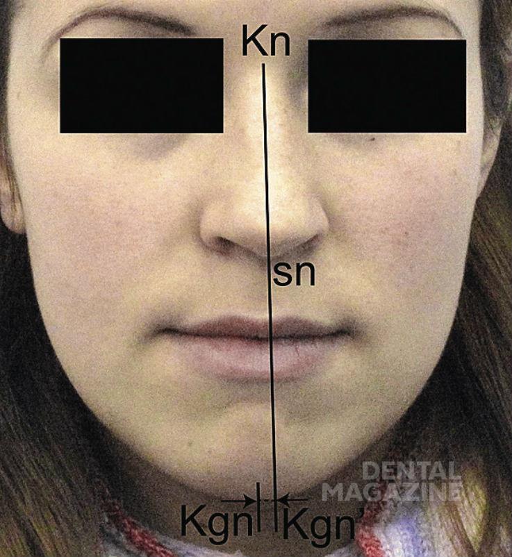 Рис. 16а. Степени выраженности нарушений эстетики лица в трансверсальном направлении: 1-я степень.