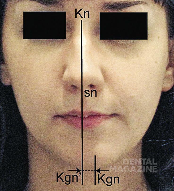 Рис. 16в. Степени выраженности нарушений эстетики лица в трансверсальном направлении: 3-я степень.
