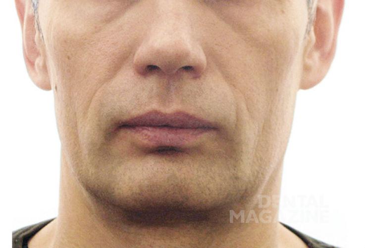 Рис. 18а. Фотографии лица пациента Н., 47 лет, в дооперационном периоде: фасная фотография лица.