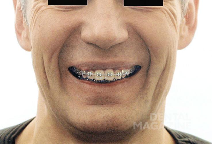 Рис. 18б. Фотографии лица пациента Н., 47 лет, в дооперационном периоде: фасная фотография лица с улыбкой.