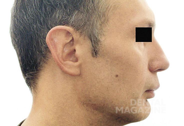 Рис. 18в. Фотографии лица пациента Н., 47 лет, в дооперационном периоде: профильная фотография лица.