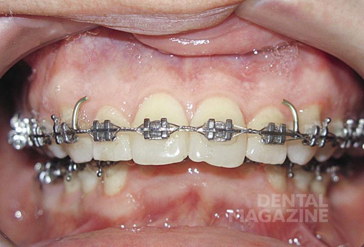 Рис. 19б. Фотографии зубных рядов пациента Н., 47 лет, в дооперационном периоде: зубные ряды в прямой проекции.