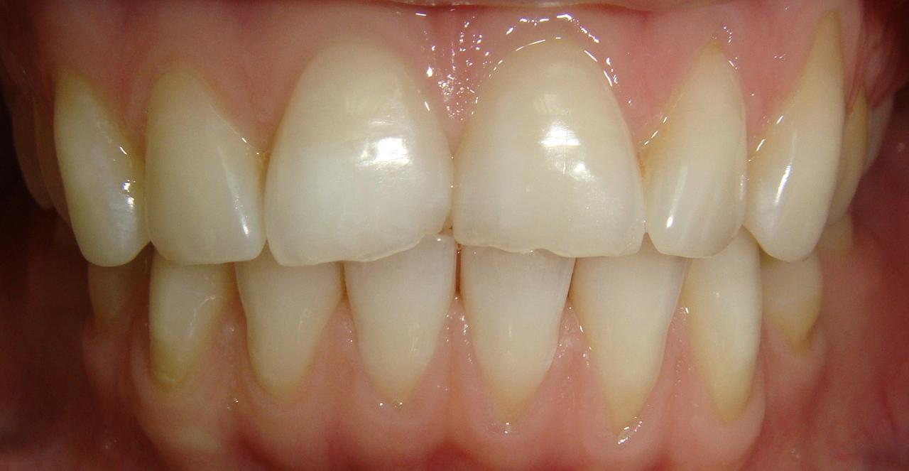 Рис. 2 а, б. Стираемость режущего края зубов 11, 21.