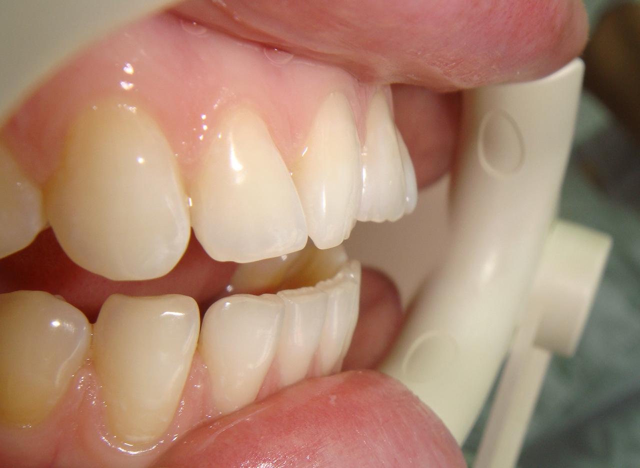 Рис. 2 в, г. Тортоаномалия зубов 11, 21.