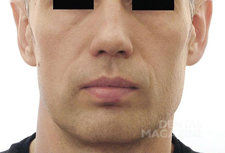 Рис. 21. Фотографии лица пациента Н., 47 лет, в послеоперационном периоде: фасная фотография лица.