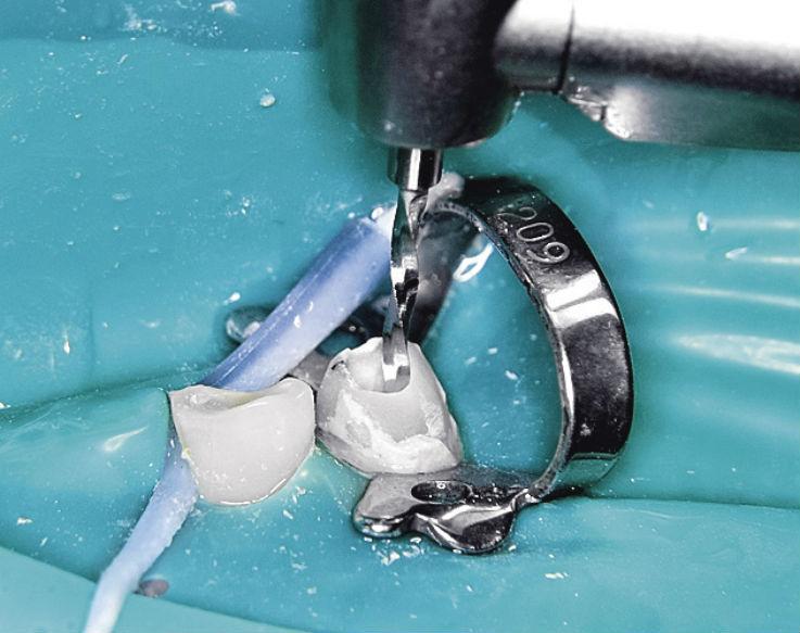 Рис. 2. Создание окончательной конфигурации корневого канала при помощи калибровочного дриля.