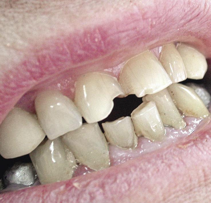 Рис. 2. Локализованная форма повышенной стираемости зубов 11, 21.