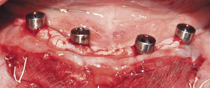 Рис. 2. Операционная рана с фиксированными коллагеновыми матрицами.