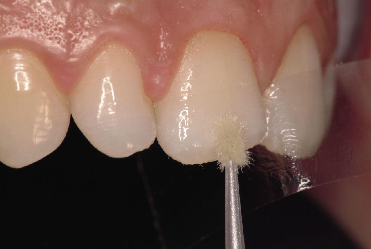 Рис. 3. Нанесение адгезива на скос эмалевой кромки режущего края.