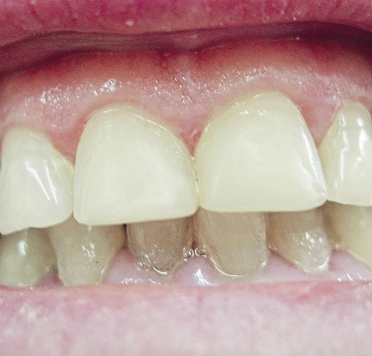 Рис. 3. Коронковая часть зубов 11, 21 восстановлена при помощи прямых композитных виниров.