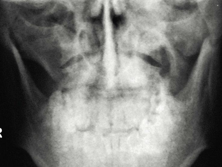 Рис. 3. Рентгенограмма костей лицевого скелета в прямой проекции.