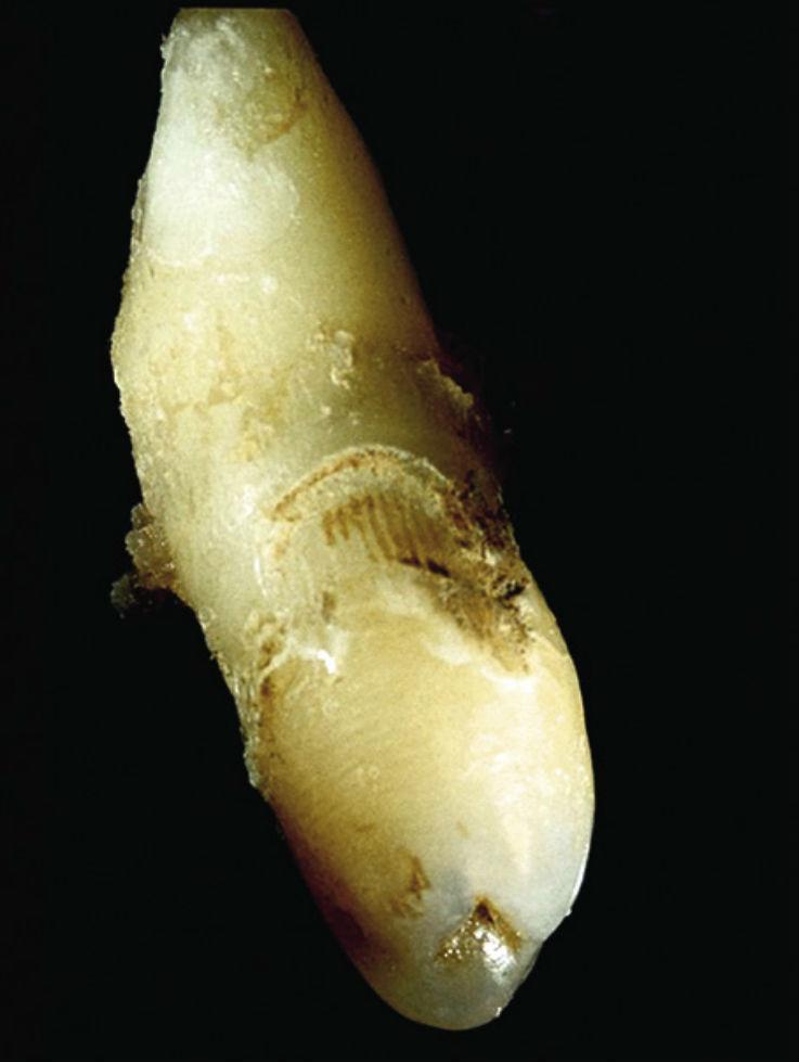 Рис. 4а. Шиповидный 22-й зуб с устьем инвагинации в области режущего края (после экстракции).