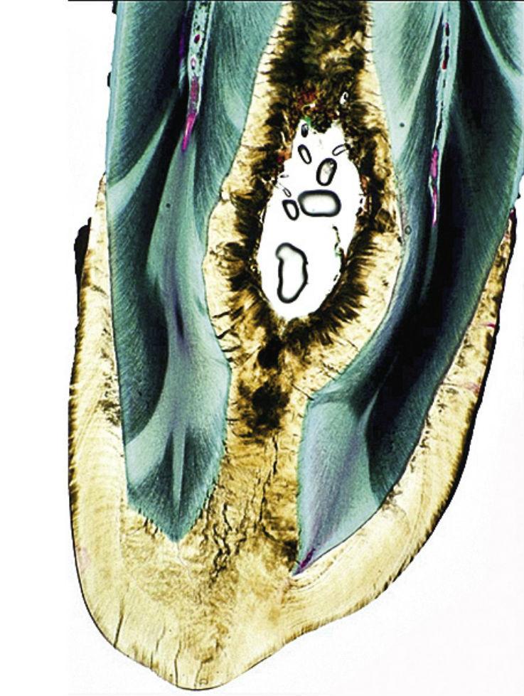 Рис. 4в. На гистологическом срезе видны эмалевая выстилка инвагинации и равномерно структурированный дентин. Включенные в центральную полость частички являются артефактом.