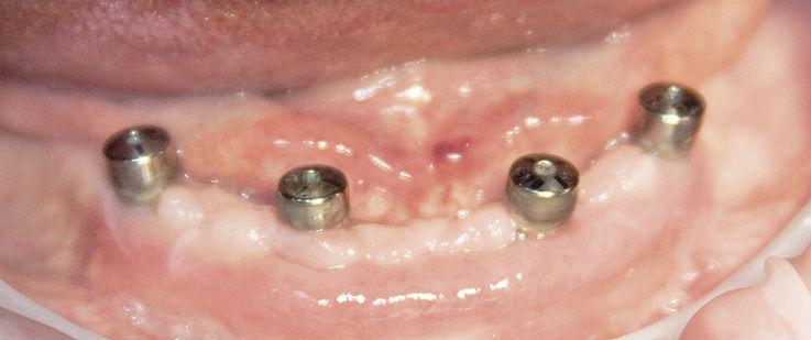 Рис. 4. Через 2 недели после операции. Конечный результат пластики мягких тканей.