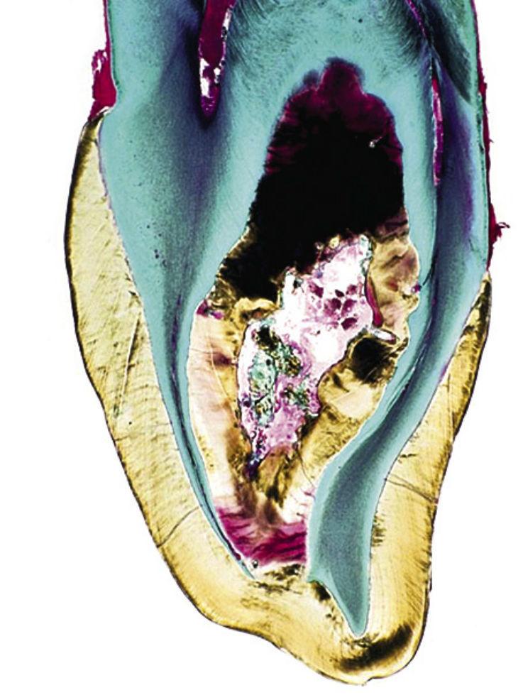 Рис. 5д. Шиповидный 12-й зуб с фистулой; гистологический препарат. Осложнения наступили уже через некоторое время после прорезывания зуба.