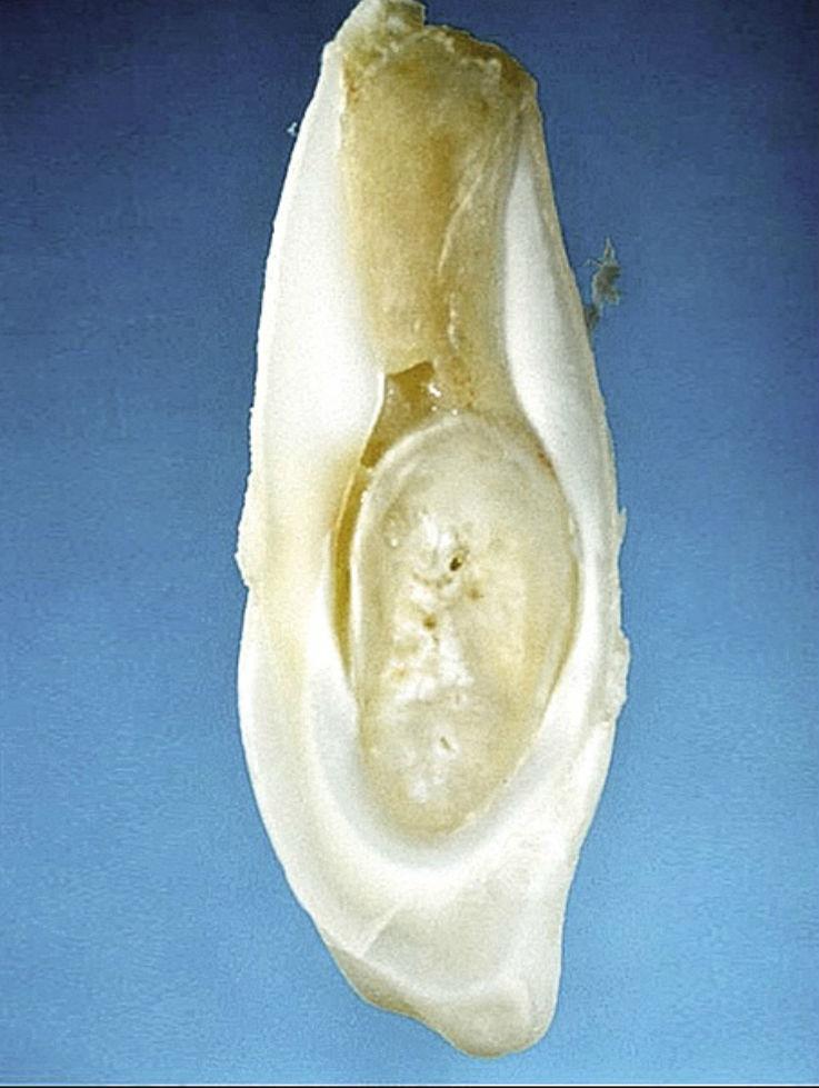 Рис. 5е. Шиповидный 12-й зуб с фистулой; гистологический препарат. Осложнения наступили уже через некоторое время после прорезывания зуба.