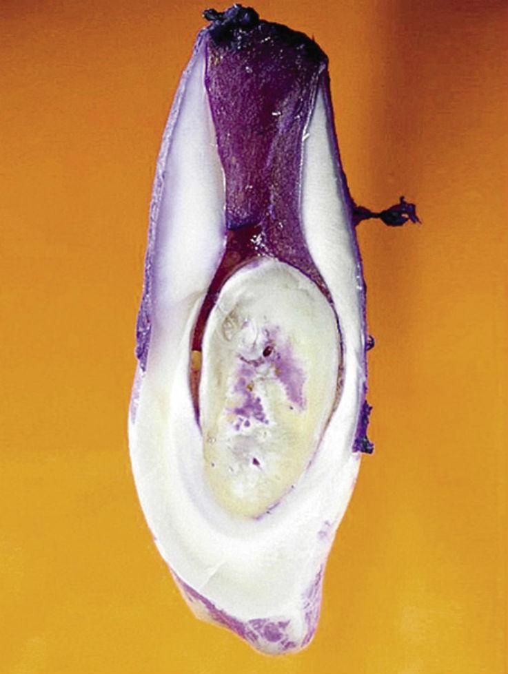 Рис. 5ж. Шиповидный 12-й зуб с фистулой; гистологический препарат. Осложнения наступили уже через некоторое время после прорезывания зуба.
