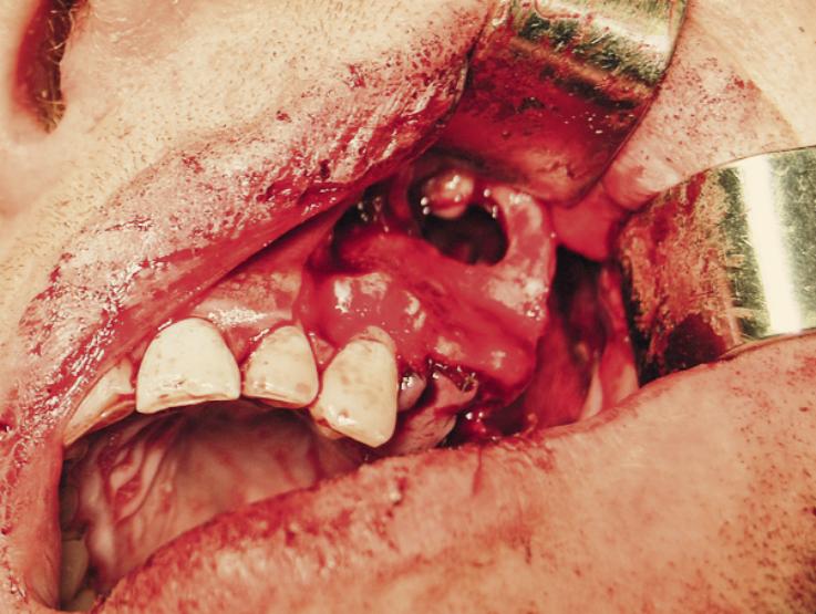 Рис. 6. Произведена резекция нежизнеспособной костной ткани в клыковой ямке и скулоальвеолярного гребня.