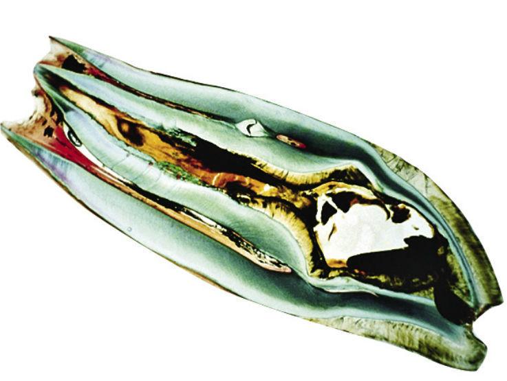 Рис. 6. Гистологическая картина аномалии dens invaginatus III типа по Oehlers. Внутренняя поверхность инвагинации неравномерно и не полностью выстлана эмалью, однако ткани дентина сформировались нормально. Пульпа циркулярно окружает инвагинацию.