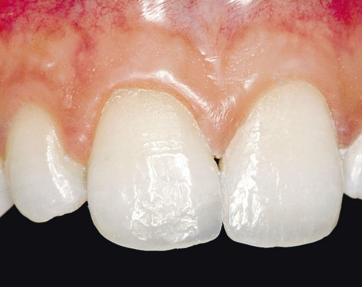 Рис. 6. После полирования до зеркального блеска реставрации зубов 21 и 11 становятся абсолютно незаметными.