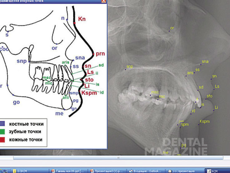 Рис. 7. Экранная форма автоматизированной версии модифицированной методики анализа боковых ТРГ Cephalo simplex: идентификация костных, кожных и зубных точек.