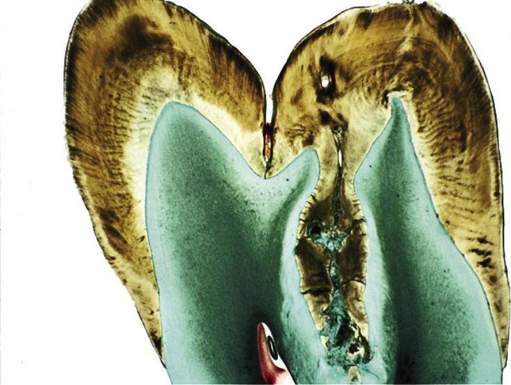 Рис. 7. Гистологическая картина инвагинации в области моляра. Устье инвагинации находится в области верхушки жевательного бугорка.